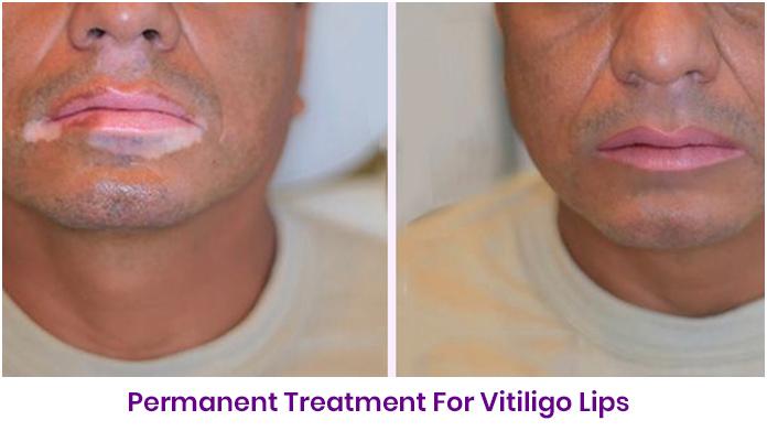 Permanent Makeup For Vitiligo In India Saubhaya Makeup