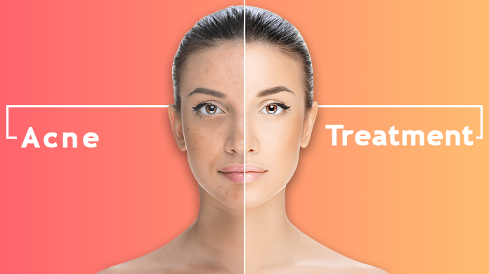 Acne Scar Treatment Delhi