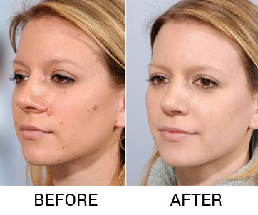 micropigmentation in delhi