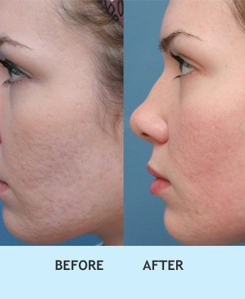 acne scar treatment in delhi, Best acne treatment in west delhi, Best acne treatment in delhi, Best dermal fillers in delhi, Prp treatment for acne scars