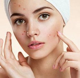 acne treatment in delhi, Best acne treatment in west delhi, Best acne treatment in delhi, Best dermal fillers in delhi, Prp treatment for acne scars