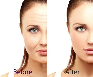 Anti Aging Treatment In Delhi Anti Ageing Treatment Anti Aging