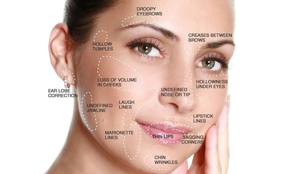 dermal fillers treatment in delhi, dermal fillers treatment in delhi, dermal fillers treatment, dermal fillers, dermal fillers before and after, dermal fillers side effects, dermal fillers in north delhi