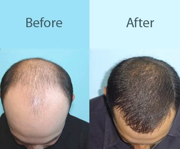 best hair regrowth treatment in delhi