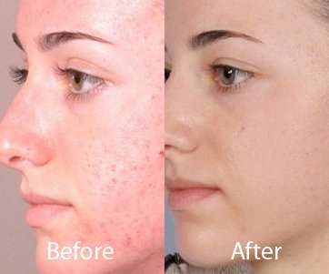 best microdermabrasion clinics in delhi