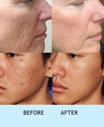 microneedling for acne scars, Microneedling for acne scar in delhi, Microneedling therapy india, Microneedling for acne scar in rajouri garden, Microneedling therapy in india