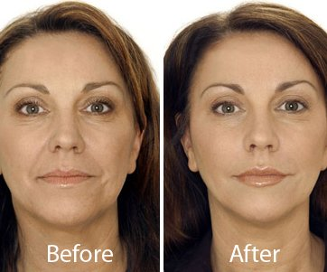 non surgical skin lift in delhi