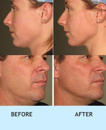 non surgical skin lift clinic delhi, Non surgical wrinkle treatment in rajouri garden, skin lift treatment in west delhi, cheek uplift in pitampura